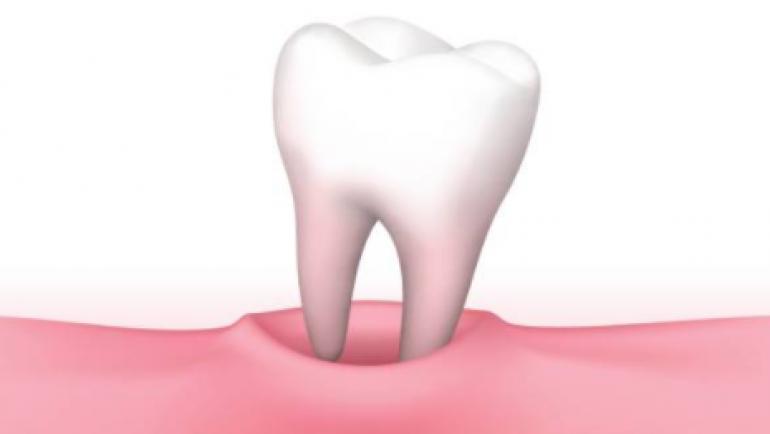 Rêve de perte de dents